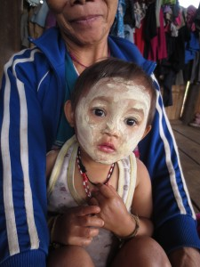 The Karen  children and young women often like to put a clay compound on their faces